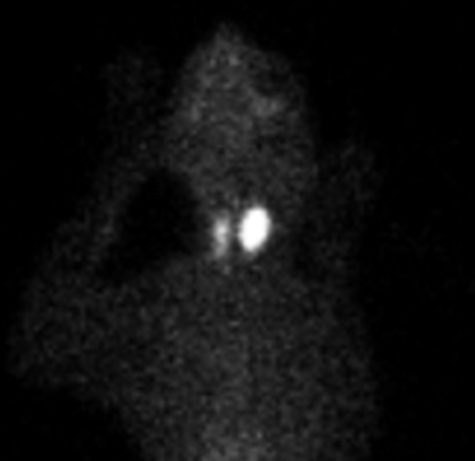 Nuclear Scintigraphy
