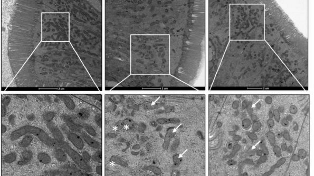 Microscopic images showing protective effects of L. plantarum on mitochondrial structure and density in SIV-infected gut.
